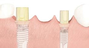 implanty stomatologiczne - łącznik