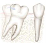 przesunięcie zęba