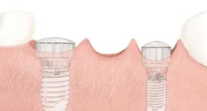 śruby do implantów zębowych